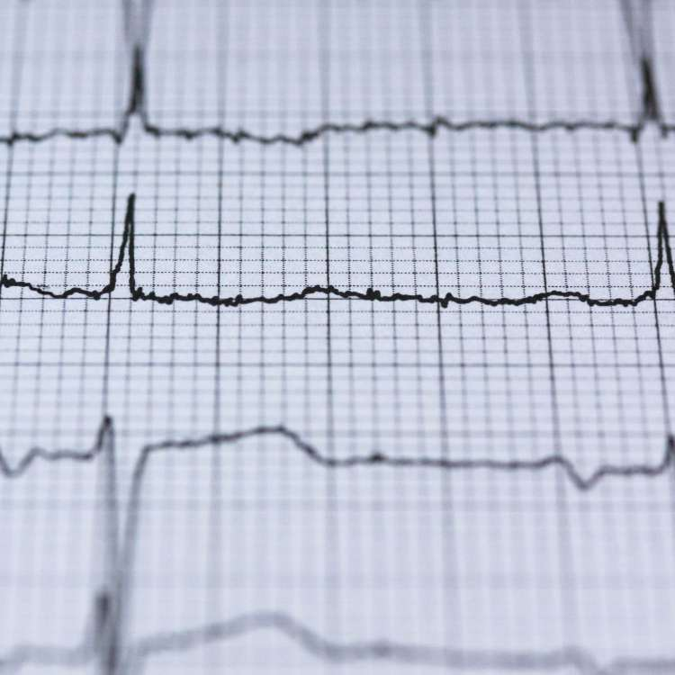 Can one take Viagra after a heart attack?